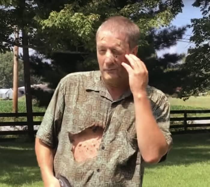 pest control wasps dangerous man stung